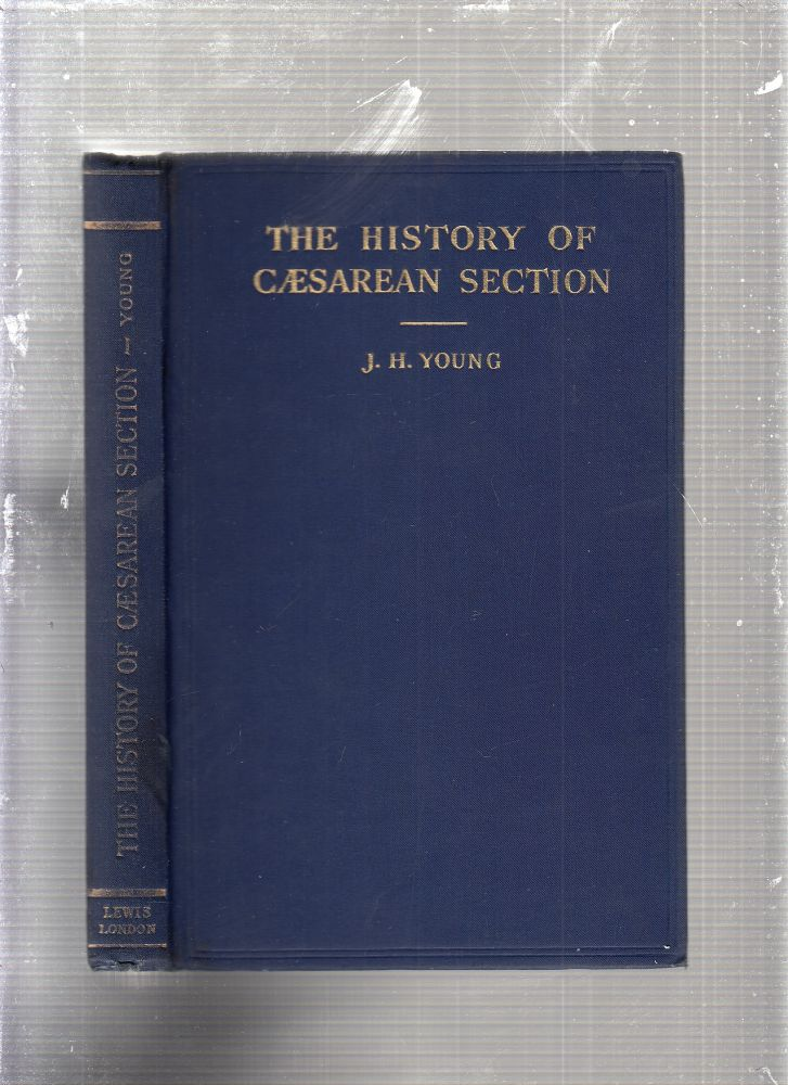 Caesarean Section: The Hisotry and Development of the Operation from Earliest Times. J H. Young.